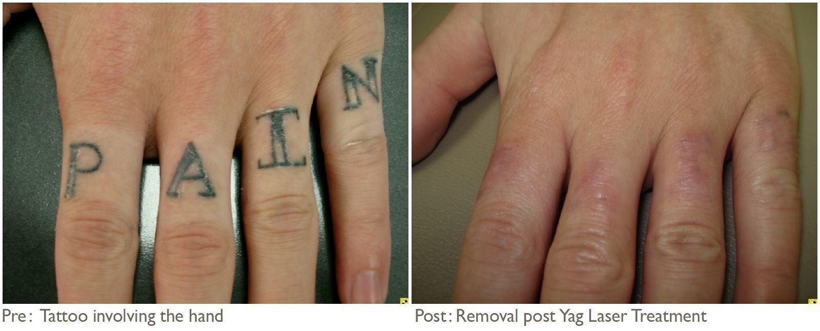 Tattoo Removal Before And After Pictures and Article
