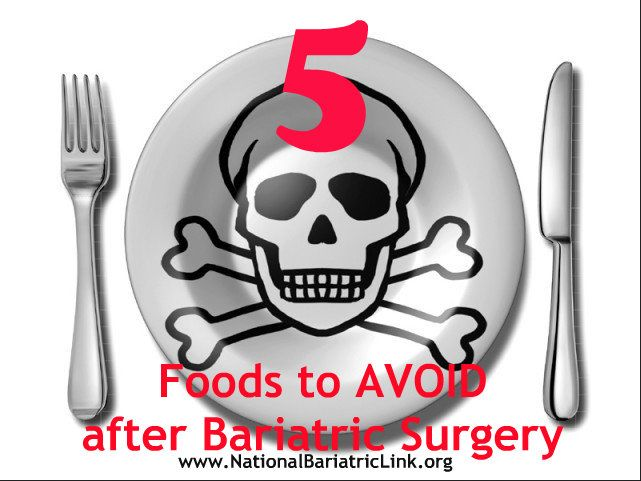 5 Foods To Avoid After Bariatric Surgery There Will Be Foods That