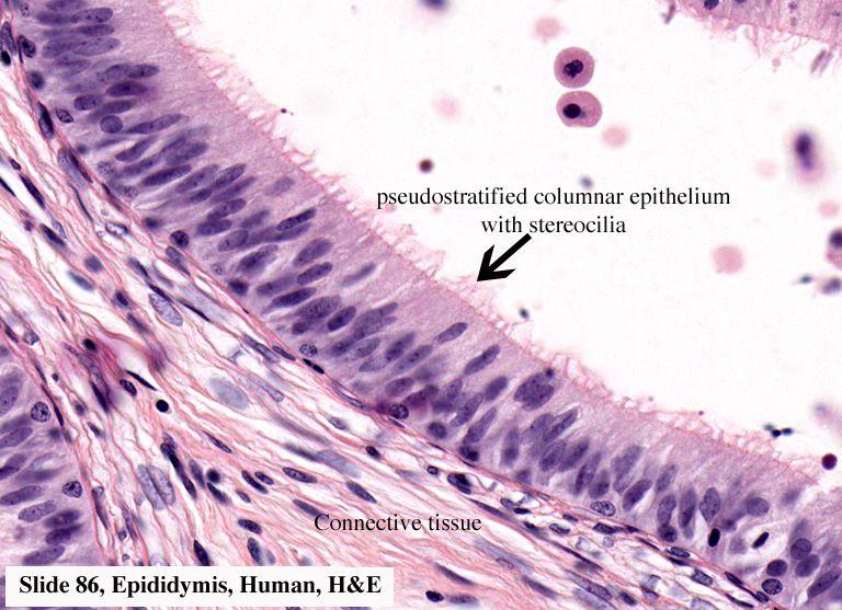 Simple cuboidal Simple ciliated columnar Pseudostratified columnar ...
