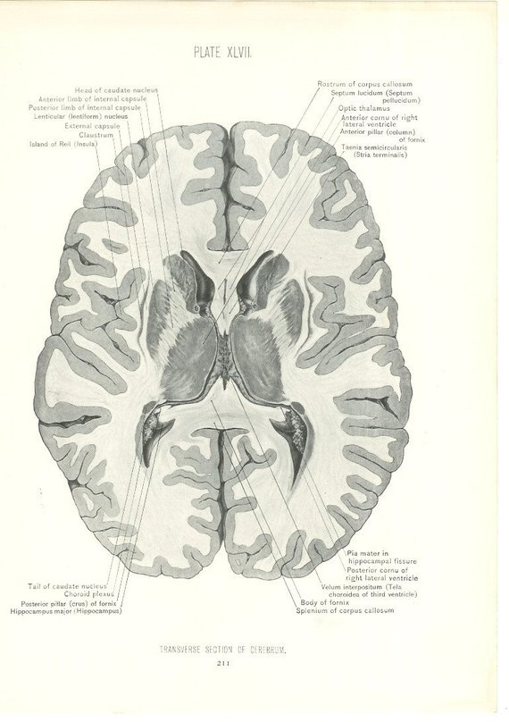 1926 Human Anatomy Print Transverse Section Of Brain Vintage