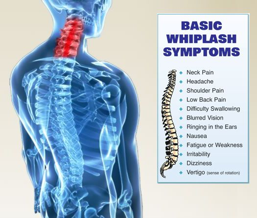 Initial Procedure When Looking At Whiplash Injuries
