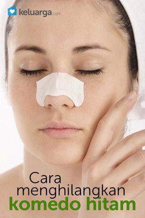 Cara Menghilangkan Jerawat Dan Komedo Di Hidung