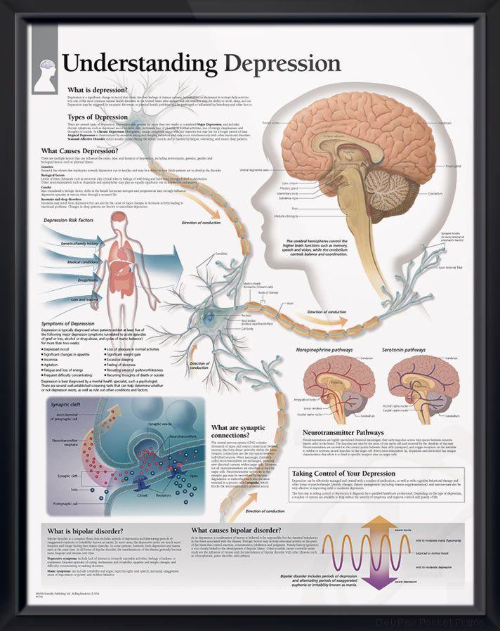 Understanding Depression Chart 22x28 | Doctors Anatomy Posters ...