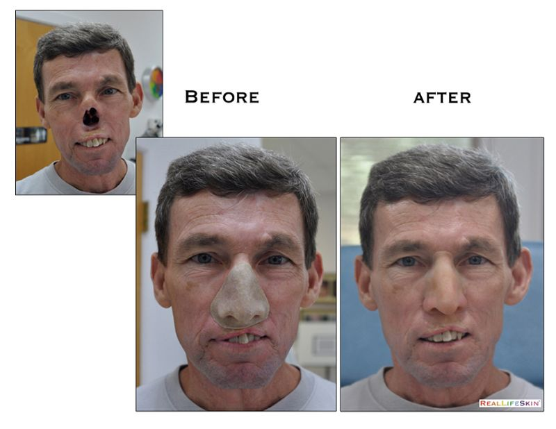ocular prothesis tucson At arizona ocular and facial plastic surgery, your comfort and well-being are our prioritieswe want to create a positive experience for each patient starting with a warm greeting and ending with exceptional results from surgical enhancement to nonsurgical skin care, every treatment is customized according to your goals.