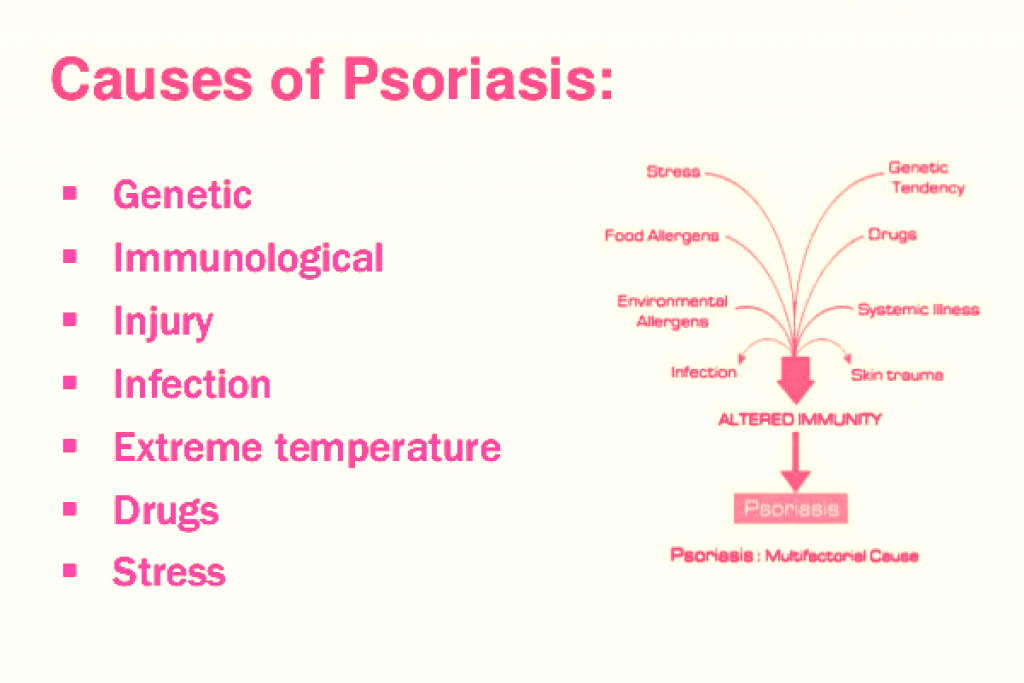 9 Best Essential Oils for Psoriasis on scalp and natural recipes