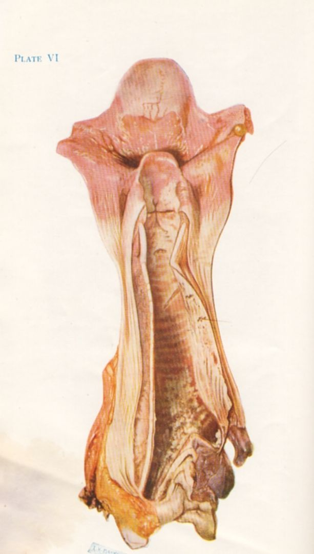 Ulceration Of The Trachea By Mustard Gas Wwi The Drawing Is Of A