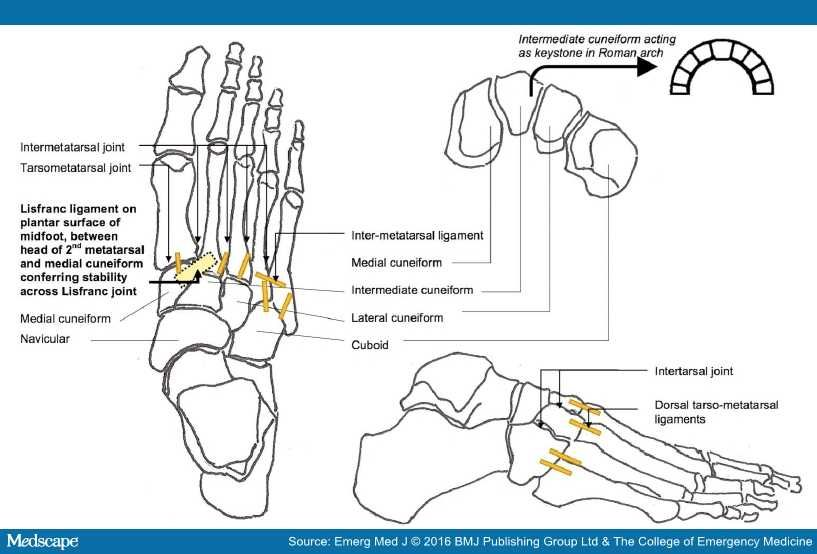 Lisfranc Fracture Dislocation: A Commonly Missed Injury | Lisfranc ...