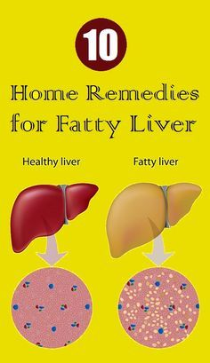 Home Remedies for Fatty Liver Disease | liver detox