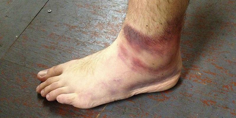 Esguince de tobillo en corredores: definición y tratamiento | Lesiones de Corredores