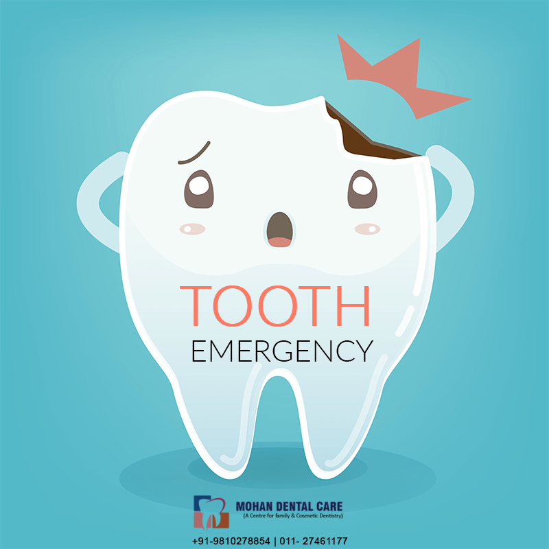 Accidents happen, and at time it happens with your teeth