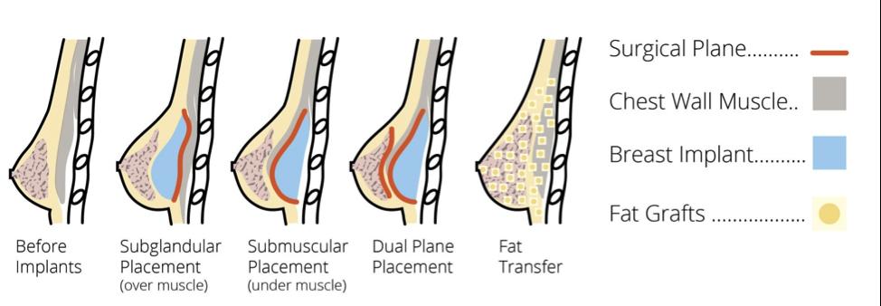 Pin On Cosmetic Procedures
