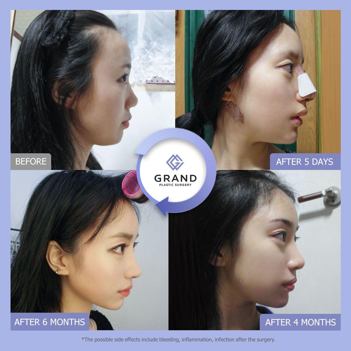 Pin by Telma on GRAND Plastic surgery, Rhinoplasty, Surgery