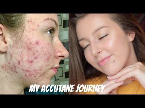 pimples after accutane