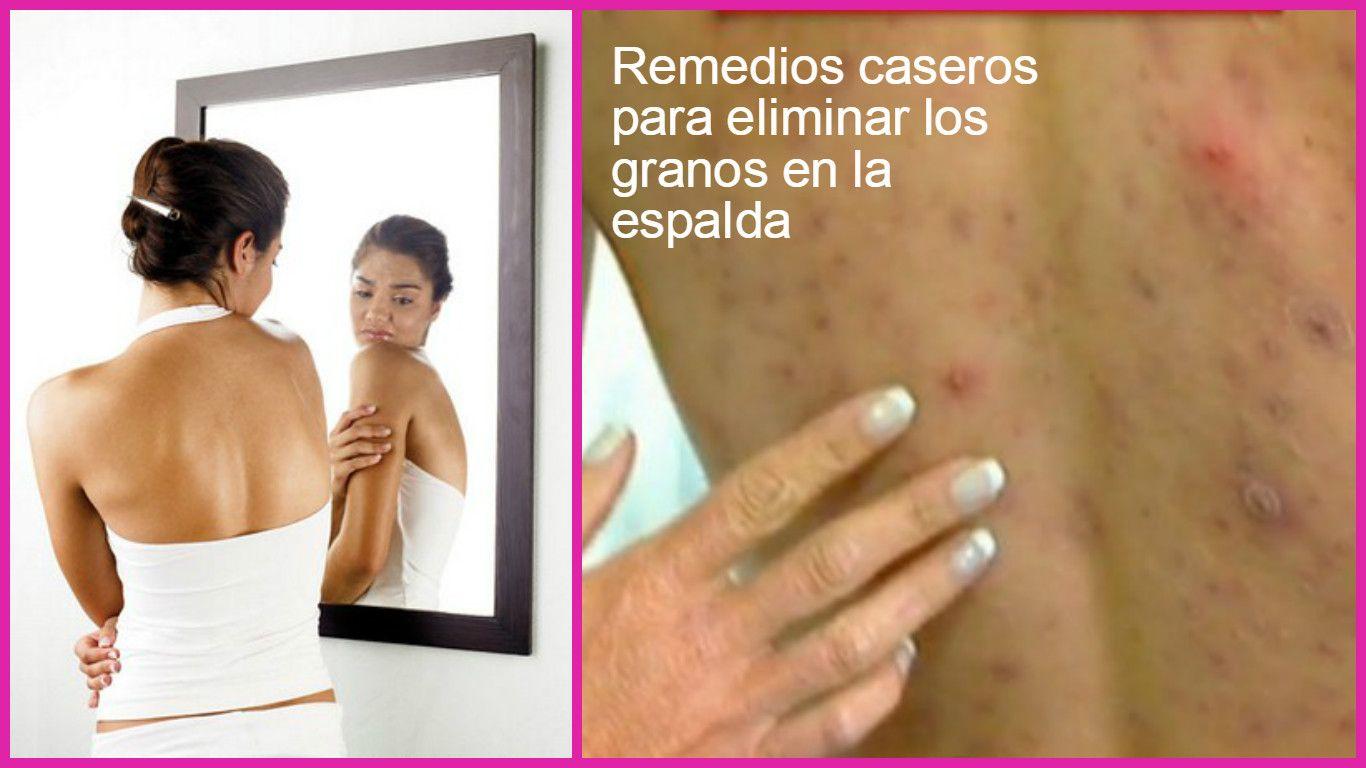 Remedios Caseros Para Eliminar Los Granos En La Espalda Face Skin Care Skin Tips Face Skin
