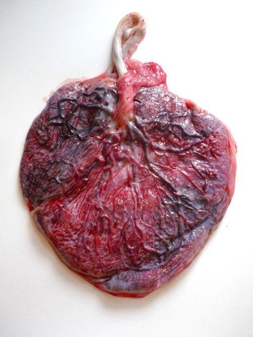 Placenta humana