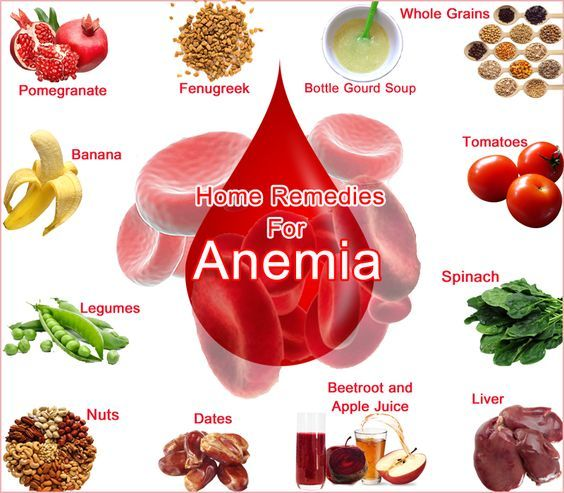 Image result for food for sickle cell patients