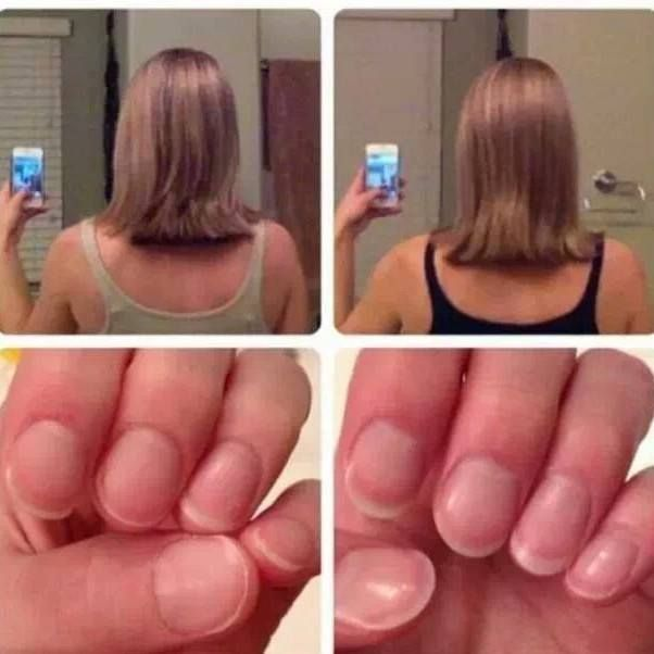 Try HAIR, NAIL SKIN all natural supplements. Get at wholesale prices www.gethealthyhess.com