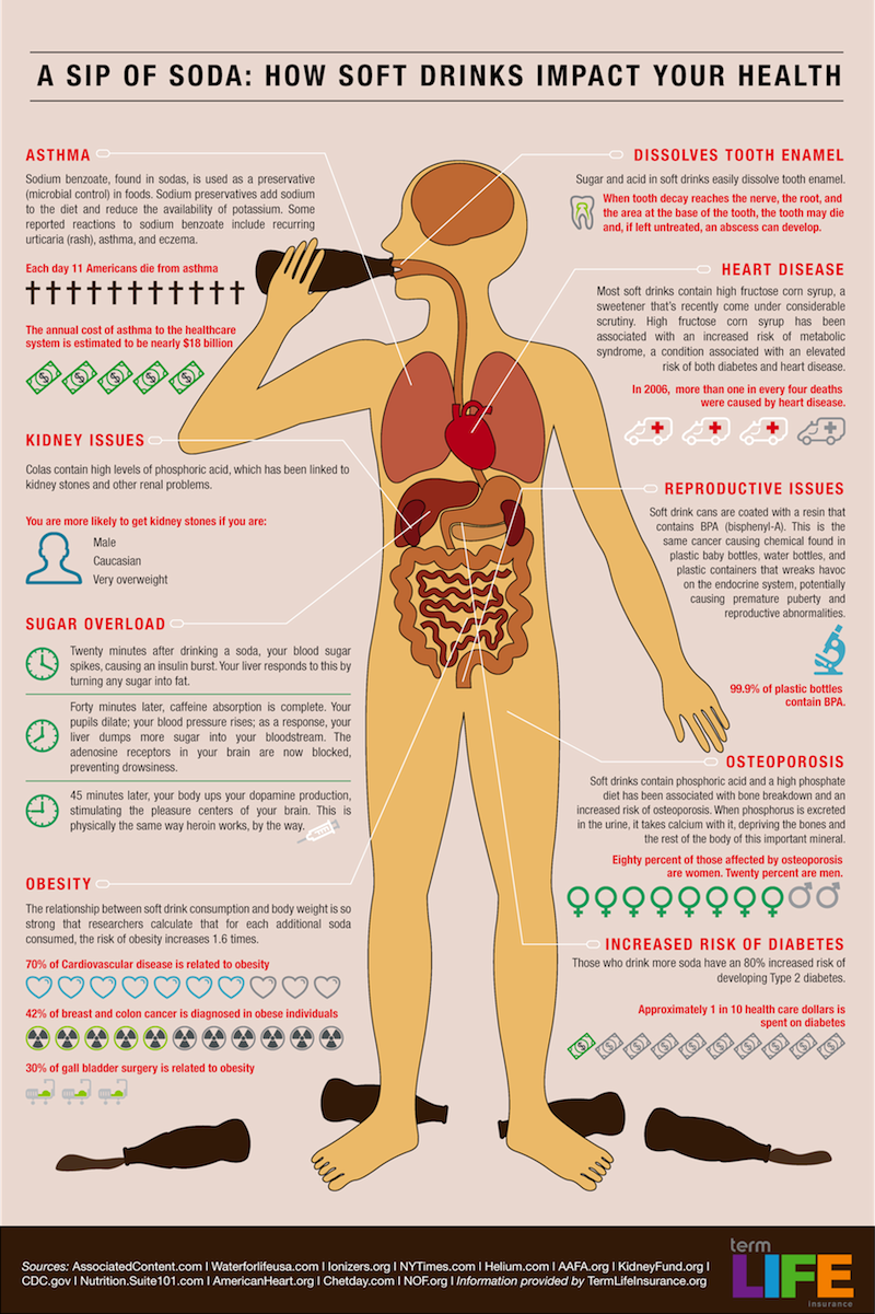 Soda Pop Soda Soft Drink And Infographic - How much is the human body worth infographic