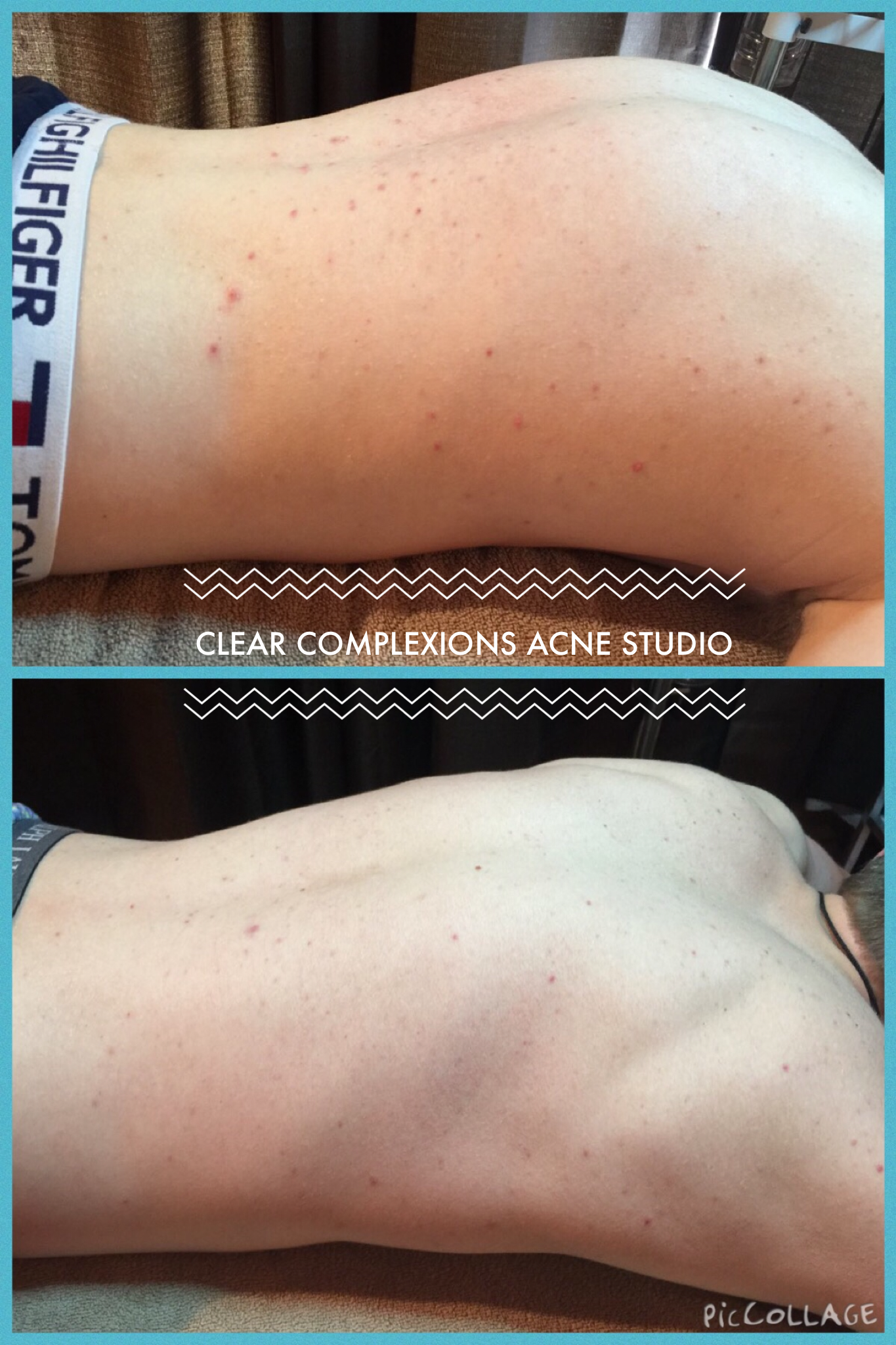 Before and After of Back Acne in just 2 weeks! #AcneScarsProducts