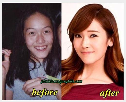 Top 5 Surprising Korean Plastic Surgery Korean Plastic Surgery Plastic Surgery Extreme Makeover