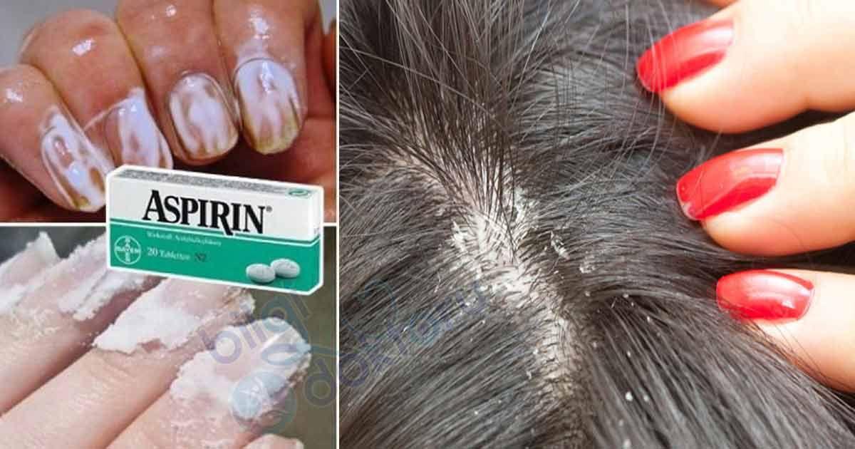2 Adet Aspirini Eritin Ve Tip Dunyasi Bu Olayi Konusuyor