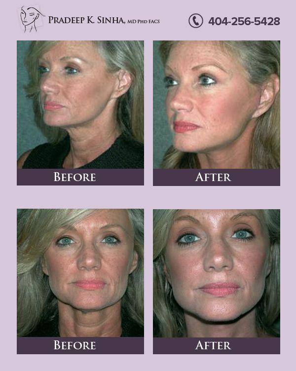 Dr Sinha Is Atlanta S Choice For Artistic And Natural Facelifts Natural Face Lift Plastic Surgery Atlanta