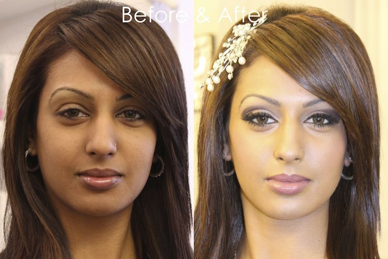 Natural Dont Need Make Up Before And After Skin Lightening