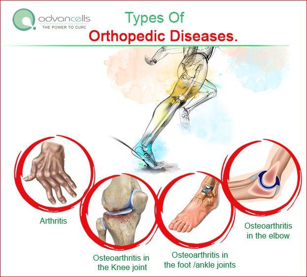 knee joint diseases