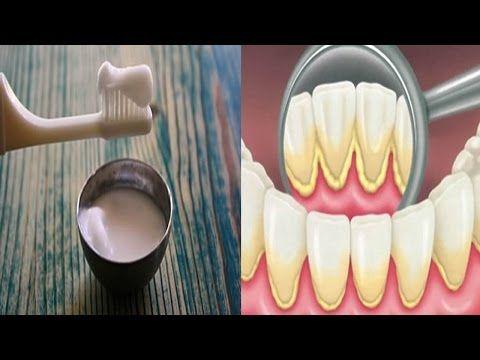 quitar sarro los dientes