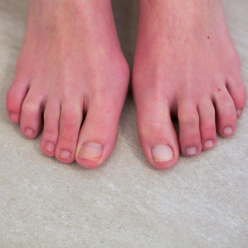 Yellow Nail Polish Toenails: Whiten Your Winter Toenails!