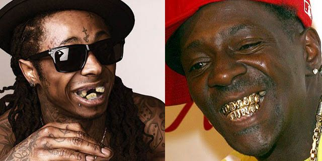 Lil Wayne No Teeth Vine Nicki Minaj Teeth Before Mag