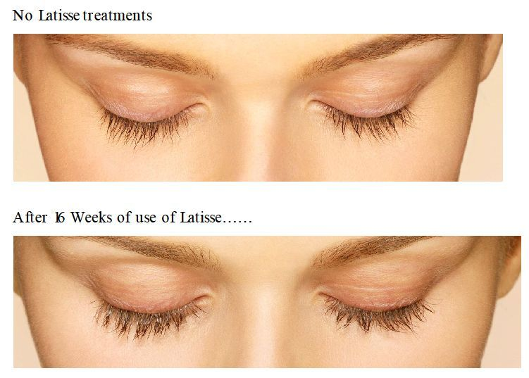 We just got our Latisse Shipment in! Come in to find out how to make your lashes longer, thicker, and darker! Pair it up with a lash tinting and never have to worry about Mascara again! 906-225-7126  superioraesthetics.org