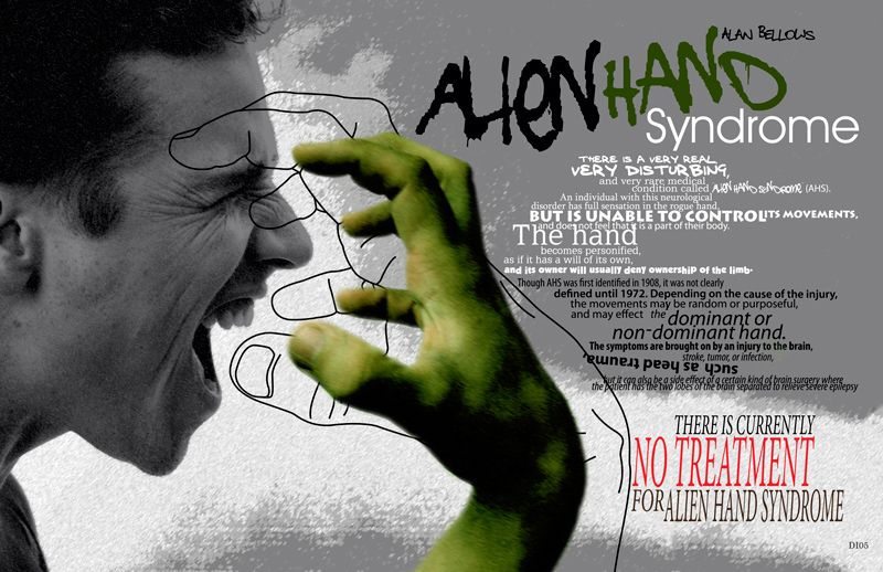 Alien Hand Syndrome – Magazine Ad | Aliens, Hands and Magazine ads