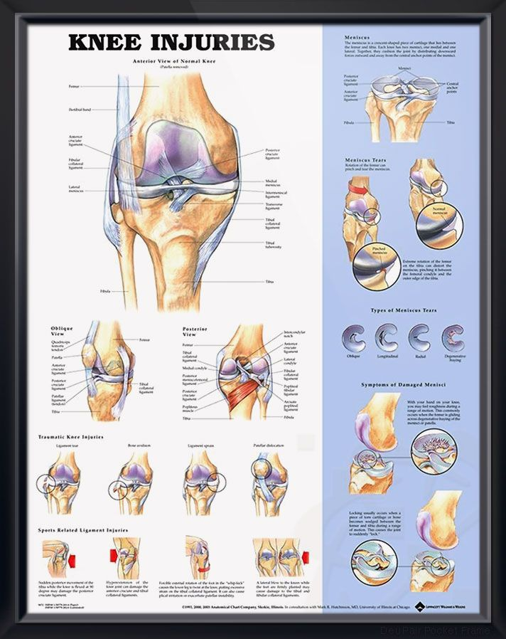 shoulder and elbow chart 20x26 yoga \u0026 exercises knee knee pain location knee diagram chart wiring diagram
