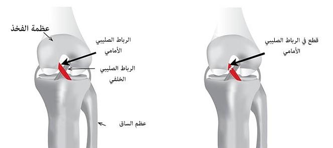 قطع الرباط الصليبي الأمامي عيادة الركبة و الفخذ Physical Therapy Exercise Therapy
