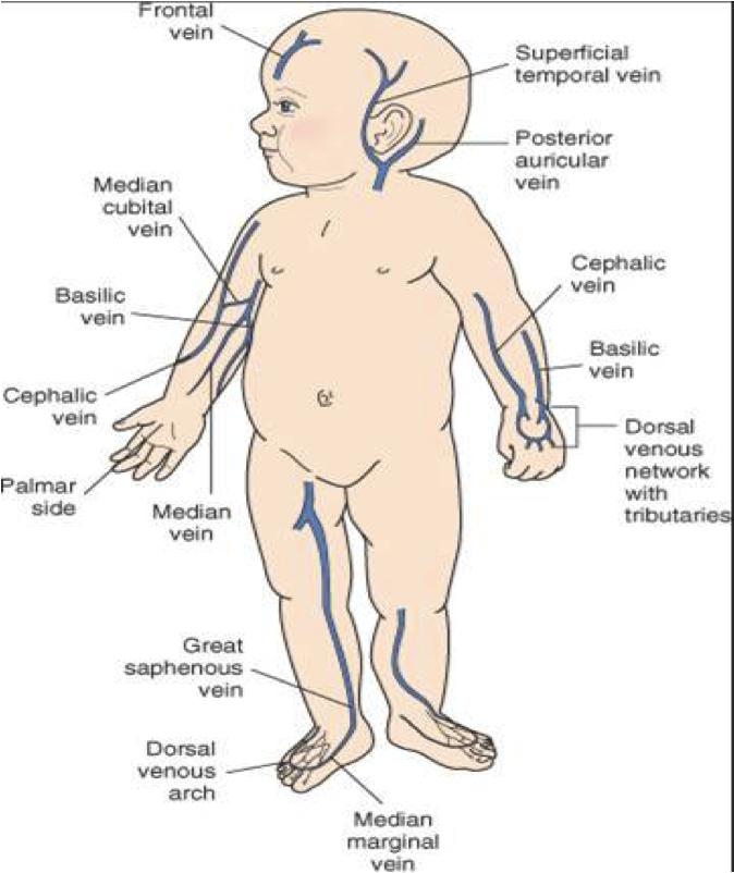 IV sites for pediatrics - including
