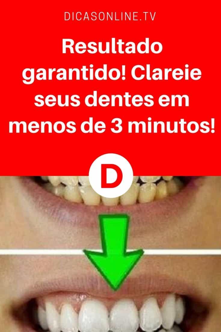 Resultado Garantido Clareie Seus Dentes Em Menos De 3 Minutos
