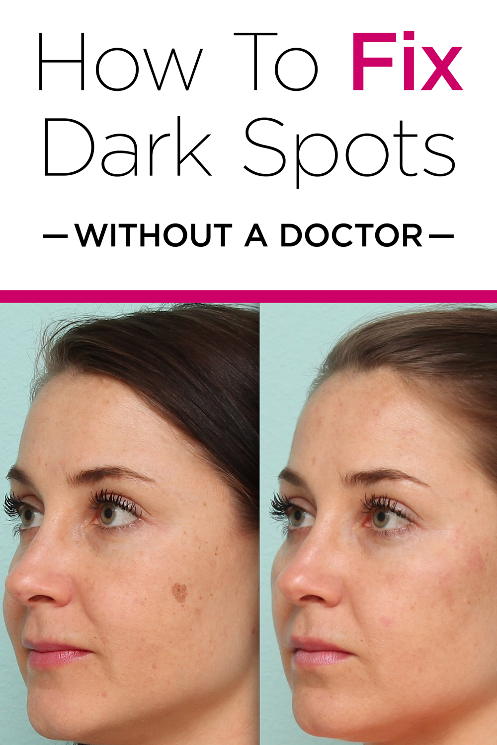 Learn How To Remove Dark Spots At Home Dark spot