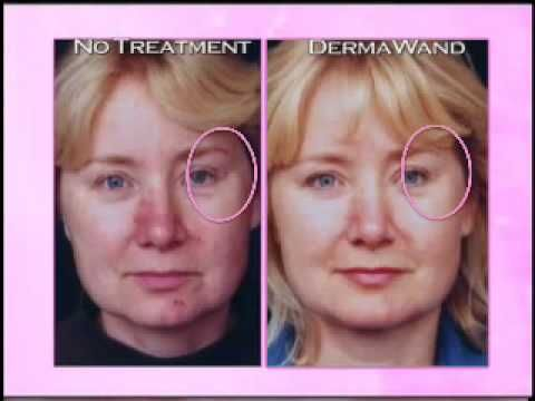 Derma Wand Before And After Comparison Derma Wand Anti Aging Secrets Anti Aging Treatments