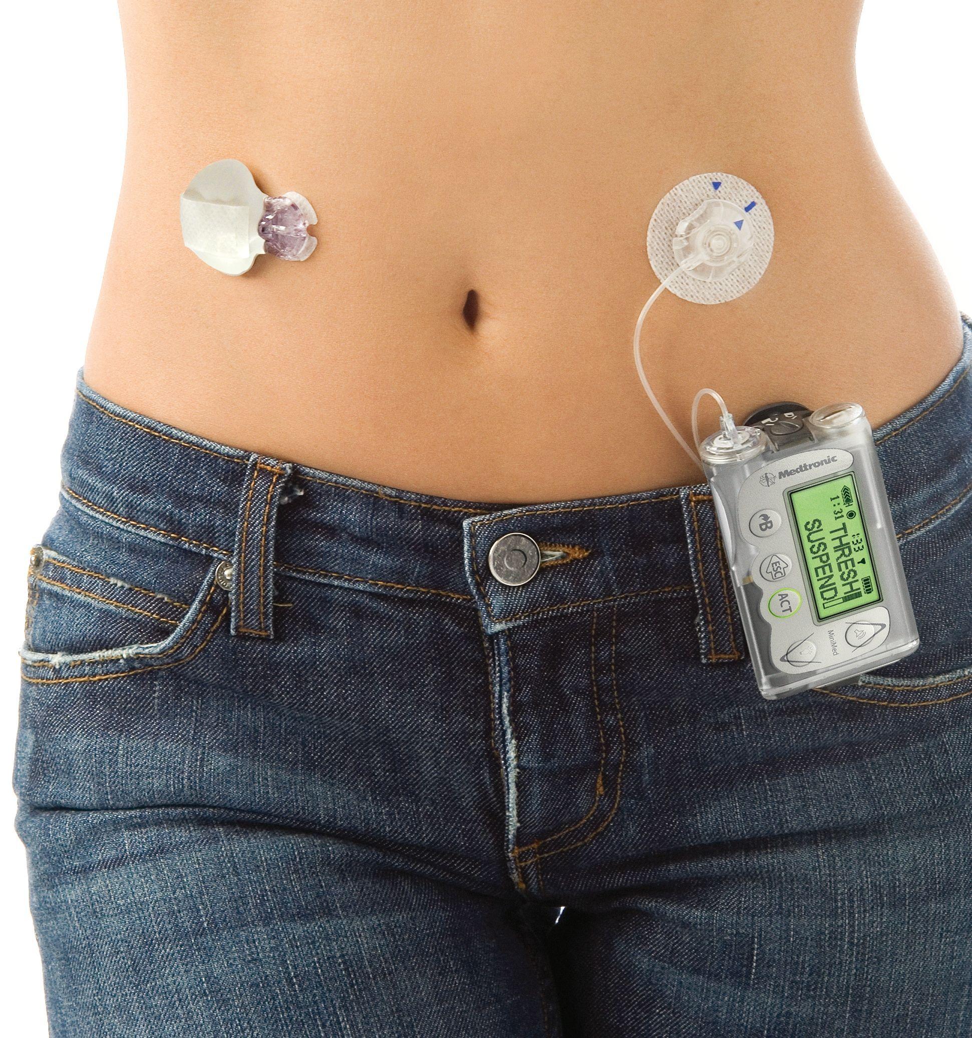 pérdida de peso cgm