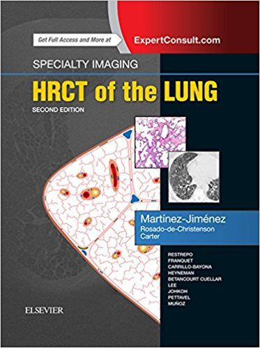 Specialty imaging hrct of the lung 2nd edition lungs specialty imaging hrct of the lung 2nd edition pdf free download part of the fandeluxe Choice Image