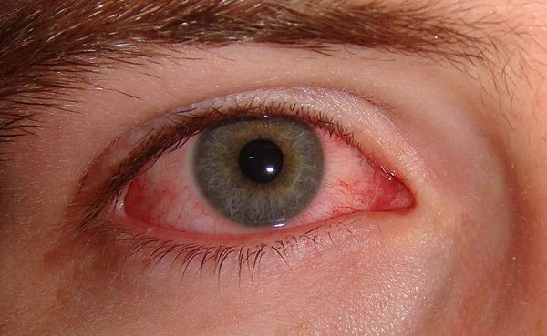 Allergic conjunctivitis -causes red, watery, itchy eyes. The common cause is an allergy to pollen in the hay fever season. Other causes are less common such as allergies to house dust mite, cosmetics, and problems with contact lenses. Eye drops usually ease symptoms.