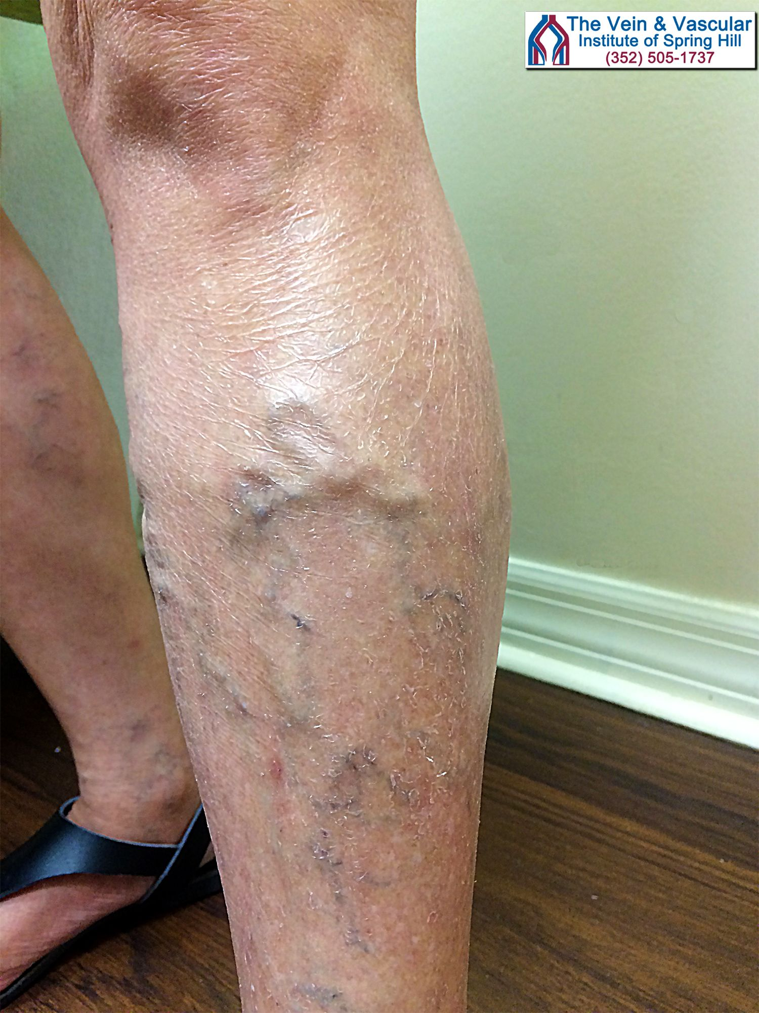 Flaky skin, varicose veins, spider veins and skin discoloration ...