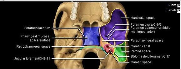 Shows the parapharyngeal spec, the parotid space, the cartoid space ...