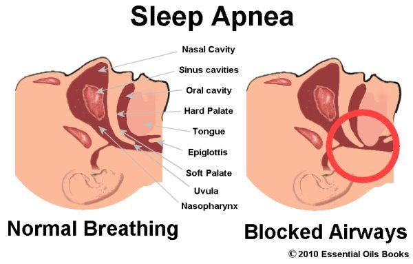 Essential oils for sleep apnea