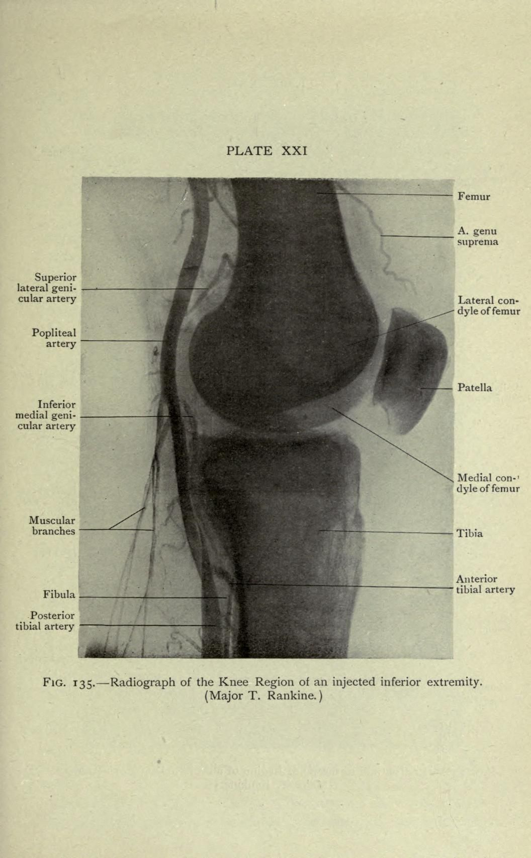 Cunninghams Manual Of Practical Anatomy 7th Ed 1921 Revised And