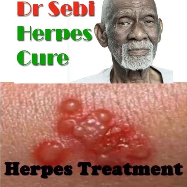 Did You Know Dr Sebi Cured #Herpes ? Get our special formula Link In
