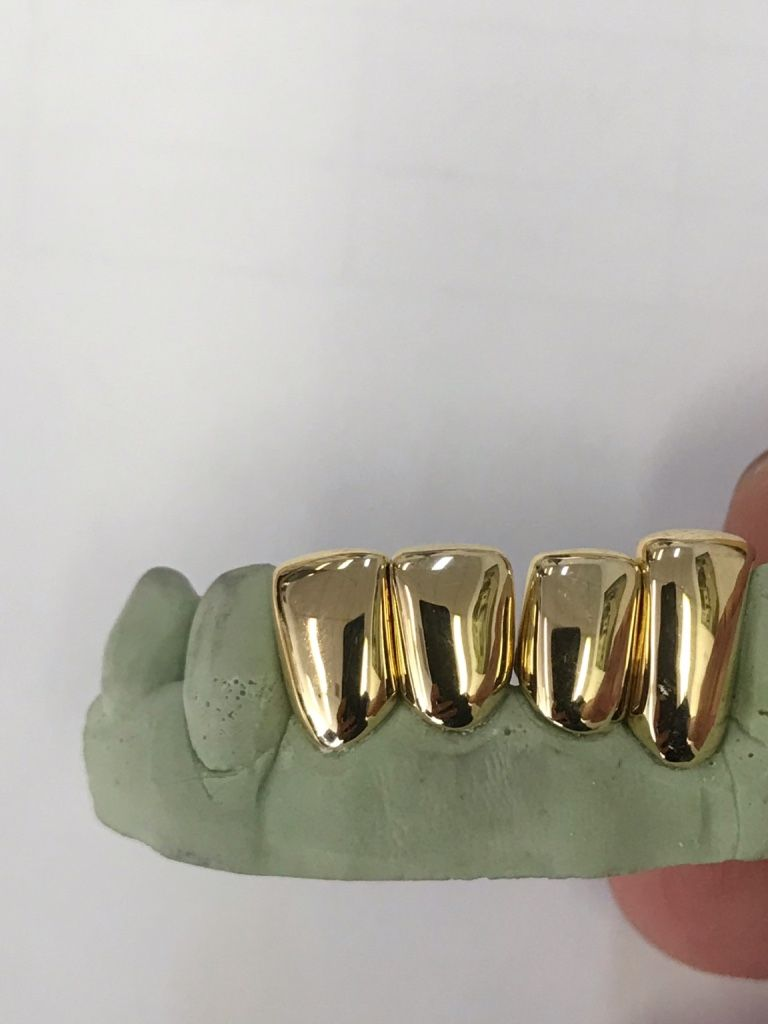 22KT Semi Permanent Gold Teeth Solid Gold & Open Face | Semi
