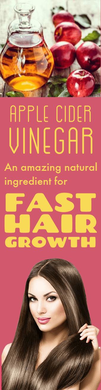 vinegar for hair dandruff, hair growth, hair fall