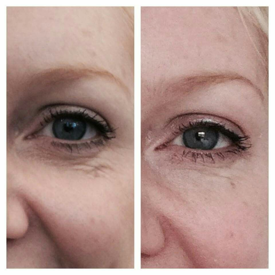 Before And After 1 Treatment Treats Creepy Skin Under The Eyes